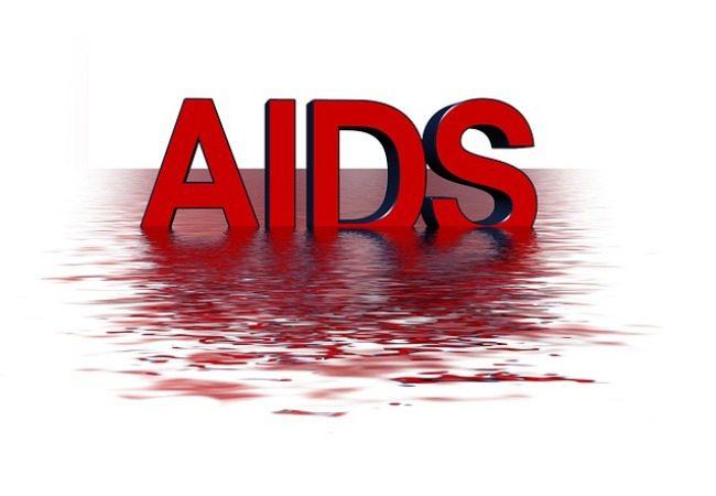 AIDS: Ένα βήμα πριν την ανακάλυψη εμβολίου – Intelligence Pharma
