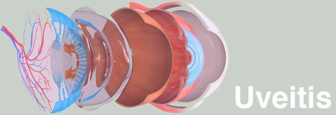 uveitis_eye_opthalmic_disease_autoimmune_endocrinology_lupus_biotech_medicine