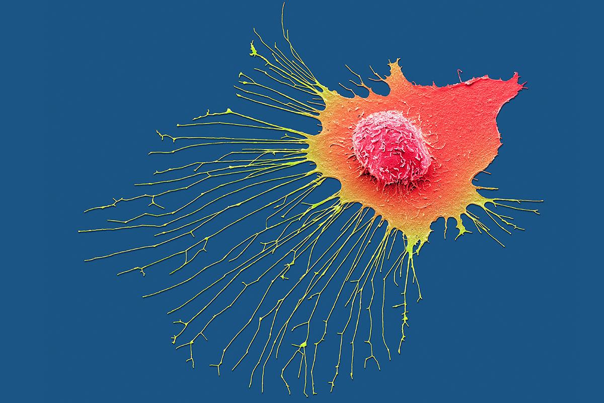 c0383255-migrating_breast_cancer_cell_sem-spl