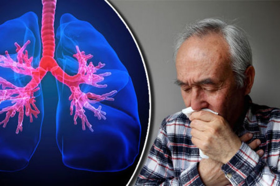 COPD-symptoms-884321