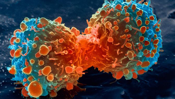 lung-cancer-cell-dividing-article.__v80030169