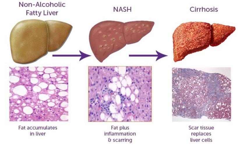 NASH-Progression-1-e1528471998498.jpg