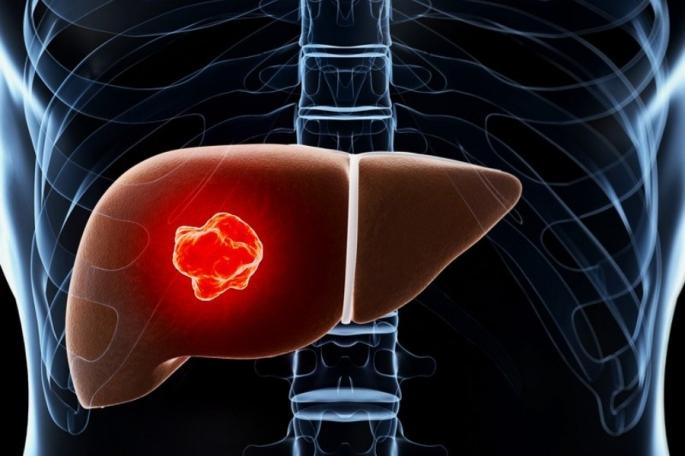 dt_160415_liver_cancer_tumor_800x600